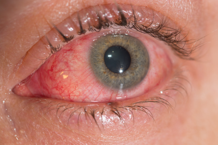 Red infected pink eye closeup