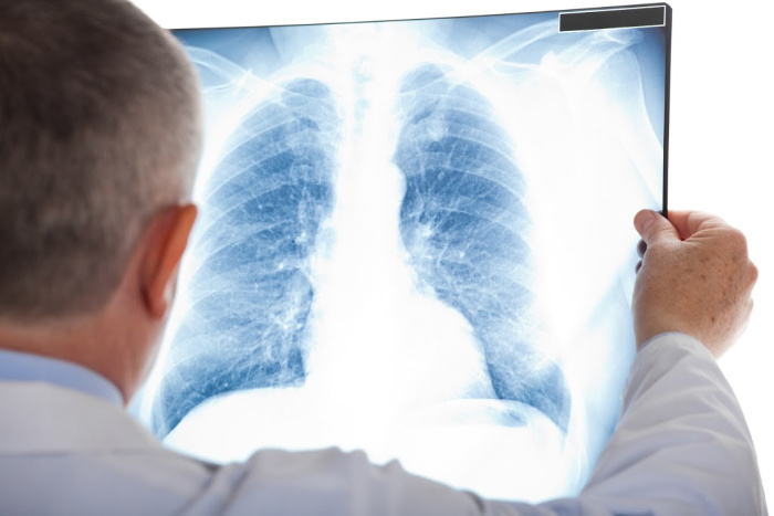 Bronchitis: What You Need to Know